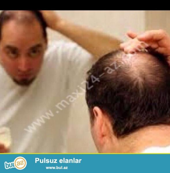Tebii mehsullarımız ile saç tökülmesine son qoyaq<br /> Hemçinin Yağlı saçlardan xilas olaq...