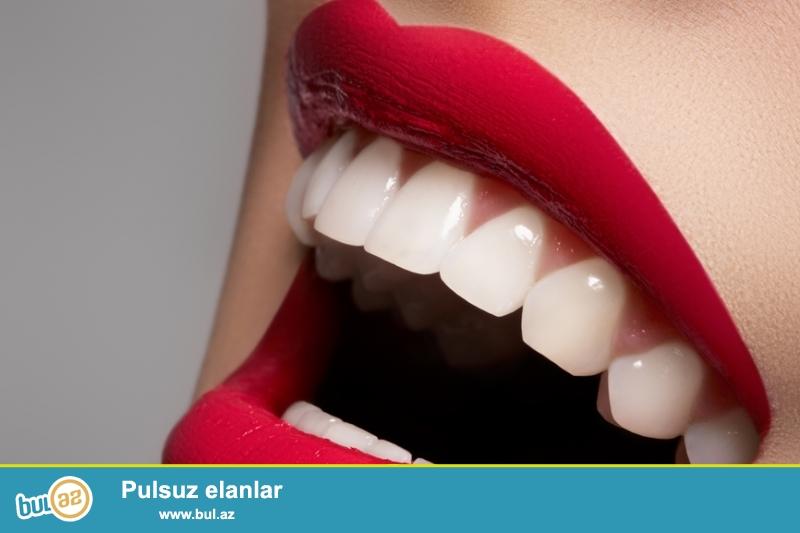 Sizə təqdim etdiyimiz diş məcunu dişlərin möhkəmlənməsini və effektiv təmizlənməsini təmin edir...